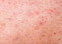 敏感肌の赤み