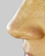 脂性肌のイチゴ毛穴