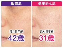 つつむの保湿肌改善