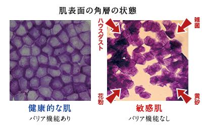 バリア機能が働いている状態と働かない状態の比較